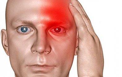 Migren nedir? Migren Belirtileri ve Tedavisi